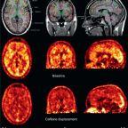 Tres ensayos cortos de divulgación – 1 La neurociencia del café