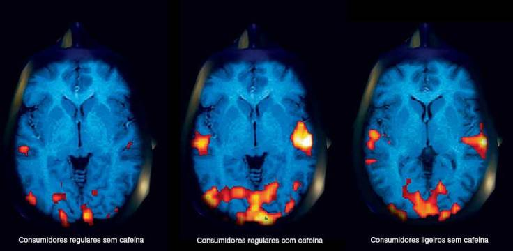 cerebro3fases_Legendas